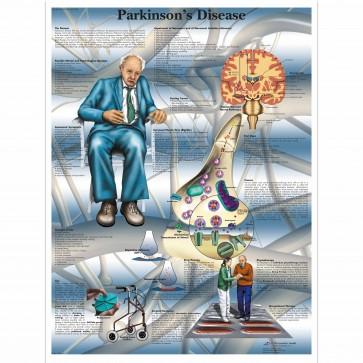 Anatomski poster - Parkins