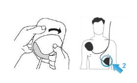 Postavljanje elektroda za defibrilaciju