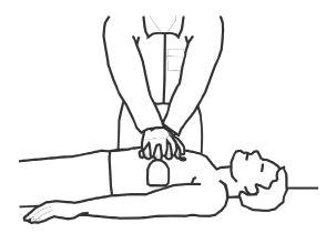 Kardiopulmonalna reanimacija